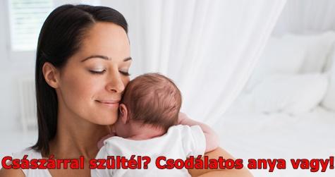 Császárral szültél? Csodálatos anya vagy!
