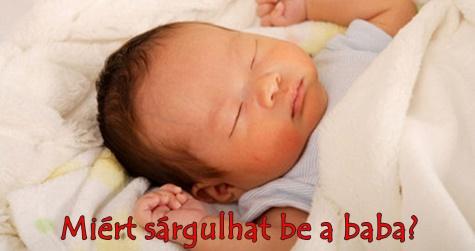 Miért sárgulhat be a baba?